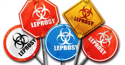 Leprosy Comes to America?