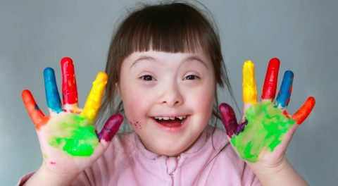 No Down Syndrome Babies Born in Iceland–All Aborted!
